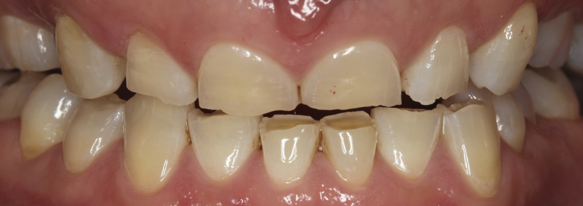 Short-teeth